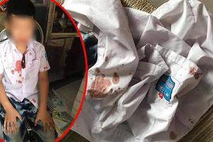 Xác định thương tích của bé trai lớp 1 bị người đàn ông hành hung ở Hòa Bình