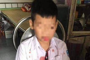 Khởi tố người đàn ông đánh nam sinh lớp 1 phải nhập viện ở Hòa Bình
