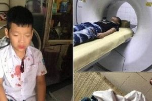 Cháu bé lớp 1 bị hành hung ở Hòa Bình là tiếng chuông cảnh tỉnh