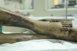 Chưa rõ nguồn lây nhiễm liên cầu lợn của người phụ nữ 59 tuổi ở Huế