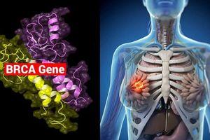 Nguy cơ ung thư vú do gene BRCA và cách hạn chế rủi ro