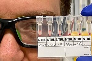 Xét nghiệm phát hiện nhanh COVID-19 bằng mẫu máu chỉ trong khoảng 20 phút