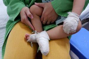Trẻ em nhập viện do tai nạn bỏng tăng đột biến