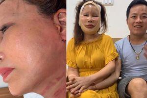 Nhan sắc sau 1 tháng phẫu thuật của cô dâu '62 tuổi' ở Cao Bằng: Sẹo chằng chịt, mặt sưng phù