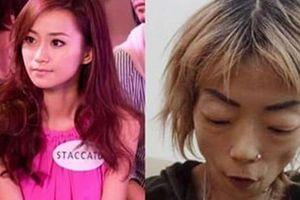 Bị chồng chê béo, sao TVB trở thành 'bộ xương biết đi' sau khi uống thuốc giảm cân