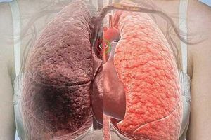 5 loại thực phẩm thanh lọc phổi: Ăn một bữa 'phổi khỏe một năm', rất ít người biết cái số 5
