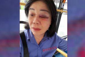 Công an điều tra vụ nữ tiếp viên xe buýt bị đánh