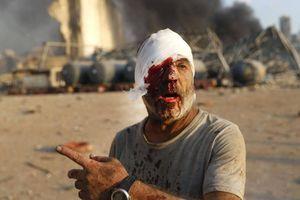 Đoạn video thể hiện sự khủng khiếp tột độ từ vụ nổ ở Lebanon