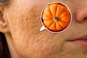 Ăn gì giúp giảm sẹo do mụn?