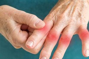 Hỗ trợ chữa phong thấp ở người cao tuổi bằng cây thuốc dễ kiếm