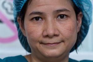 Khuôn mặt hằn vết khẩu trang của điều dưỡng Đà Nẵng