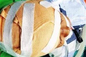 Cháu bé 5 tuổi ở Nghệ An bị chó cắn gây thương tích nặng ở vùng đầu và mặt