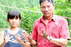 Kỳ cuối: Gia đình 3 thế hệ có tay, chân thừa ngón