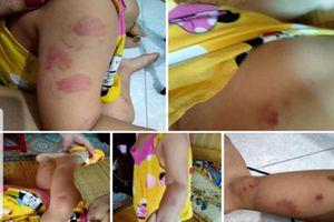 Thái Bình: Trẻ mầm non xã An Vinh nghi bị cắn tấy đỏ người khi đến lớp