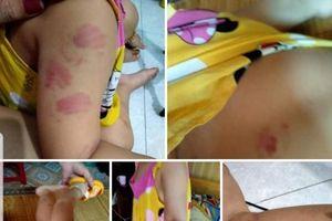 Trẻ 21 tháng tuổi ở Thái Bình đi học bị nhiều bầm tím trên người: Trưởng phòng GD&ĐT nói gì?