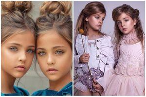 Cặp song sinh đẹp nhất thế giới thay đổi sao sau 10 năm?