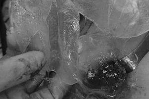 Vỡ túi silicon nâng ngực, cô gái được phát hiện khối u