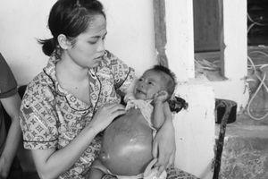 Bé gái 8 tháng tuổi bụng trướng như cái trống và lời thỉnh cầu đẫm nước mắt của cặp vợ chồng khốn khổ