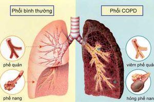 Thói quen quá phổ biến không ngờ khiến ung thư ở Việt Nam tăng không kiểm soát