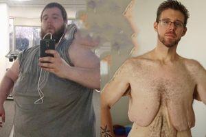 Người đàn ông giảm 146 kg sau khi bị bạn gái bỏ