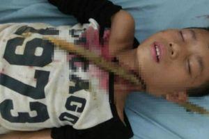 Cháu bé bị cành cây đâm vào cổ được cứu sống thế nào?