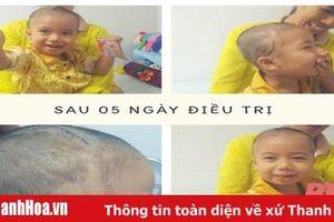 Bệnh viện Nhi Thanh Hóa xử trí thành công cho bệnh nhi bị chó cắn gây tổn thương nặng