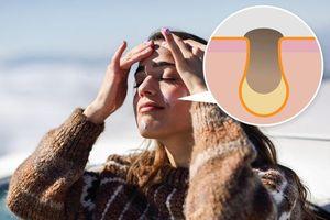 7 sai lầm chăm sóc da khiến mặt ngày càng nổi nhiều mụn