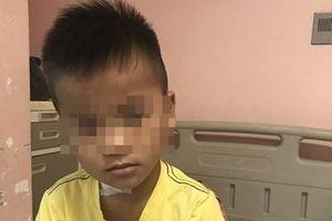 Cứu sống bé trai 7 tuổi bị kéo đâm xuyên cổ