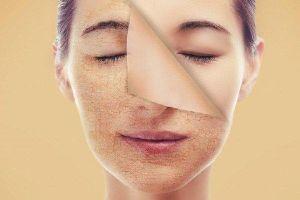 4 yếu tố khiến nếp nhăn trên da ngày một in sâu trên da