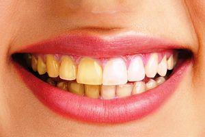 Tại sao răng bị ố vàng?