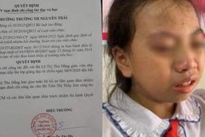Đình chỉ cô giáo tát vào má học sinh ở Hà Giang