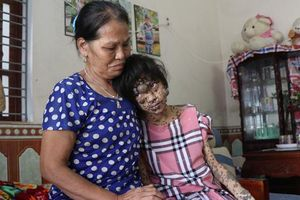 Mẹ chỉ ước cuộc sống bình thường cho đứa con mang 'thân hình của quỷ'