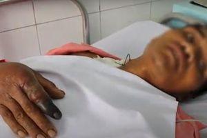 Người đàn ông thoát chết khi bị rắn hổ mang chúa dài 2,4m cắn