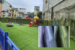 Bé gái học mầm non bị ngã gãy tay trong giờ ra chơi vẫn chưa ổn định tâm lý