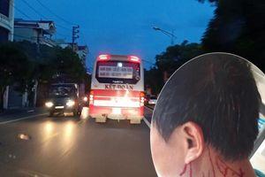 Phụ xe khách bị đánh toác đầu, gục ngã giữa đất Thủ đô