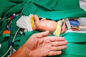 Mổ sửa ngoạn mục đa dị tật đường tiêu hóa cho bé gái sinh non