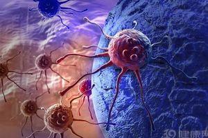 Có 5 dấu hiệu này không phải bệnh thông thường mà ung thư có thể đã 'ghé thăm' bạn