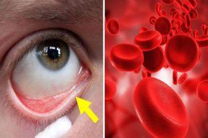 Dấu hiệu cảnh báo cơ thể thiếu máu