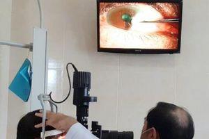 Điều trị thành công bệnh nhân bị keo dán sắt bắn vào mắt
