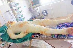 Chồng đổ xăng châm lửa đốt vợ gây thương tích 84%