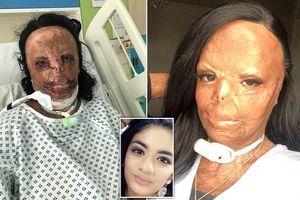 Dầu gội trị chấy bắt lửa nhấn chìm cô gái tuổi teen trong biển lửa, bỏng cấp độ 3 và mất 7 ngón tay