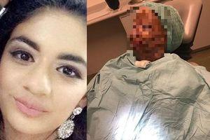 Đang ủ tóc bằng dầu gội đầu mà tóc bị bắt lửa, nữ sinh bị bỏng hết mặt và mất 7 ngón tay