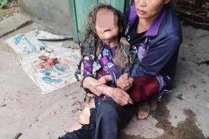 Khởi tố kẻ hành hung, thiêu sống cụ bà 90 tuổi ở Thái Nguyên
