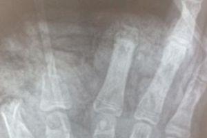 'Chế tạo' pin quạt tích điện, thiếu niên cụt 3 ngón tay