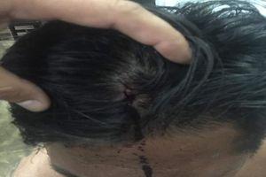1 người đàn ông bị nhóm người đánh nhập viện
