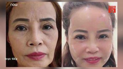 Cô dâu 62 tuổi phẫu thuật thẩm mỹ, nhan sắc mới trẻ trung như 40 tuổi