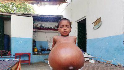 Clip: Bé trai 9 tuổi bụng phình to vì căn bệnh hiếm gặp