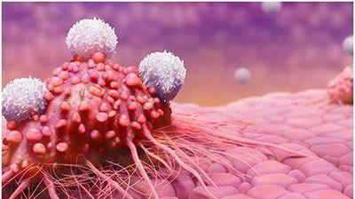 Ung thư cổ tử cung khiến 2.400 phụ nữ tử vong mỗi năm