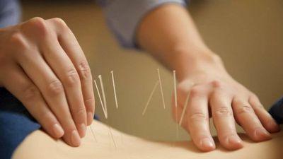 Clip: Cận cảnh trị viêm xoang bằng phương pháp cấy chỉ vào huyệt châm cứu
