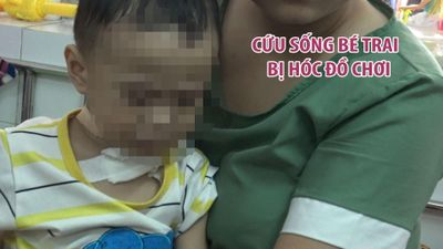 Cứu sống bé trai 11 tháng tuổi bị hóc đồ chơi là một mảnh vỡ từ vòng lắc tay